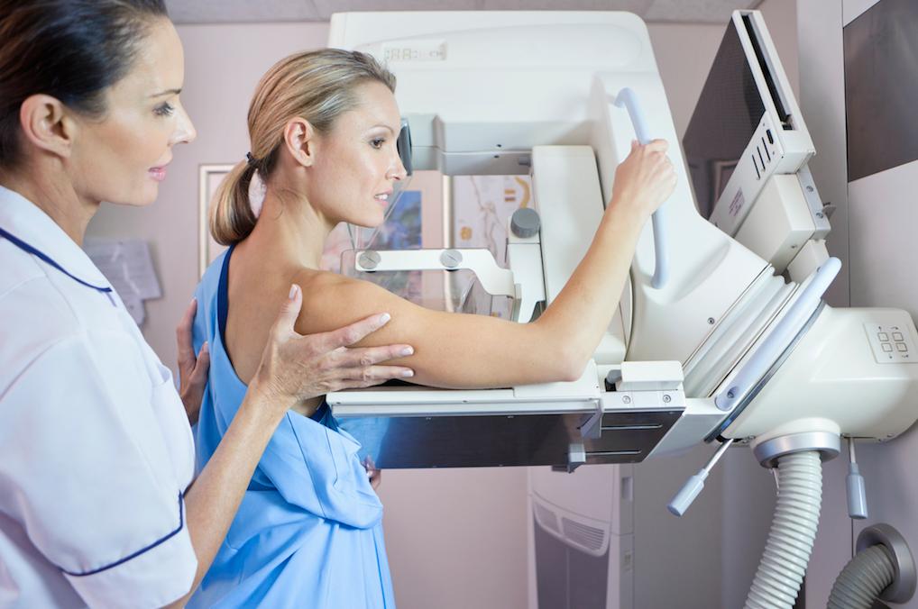 MyHealth Centres Mammogram
